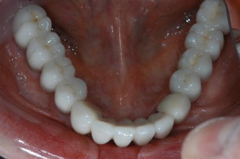 Implants to support a fixed bridge for a patient with all teeth missing after 239009