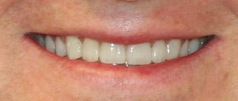 Porcelain veneer therapy