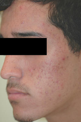 Laser Acne and Acne Scar Treatment after 82968