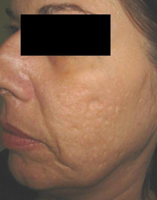 Laser Acne Scar Removal before 82939