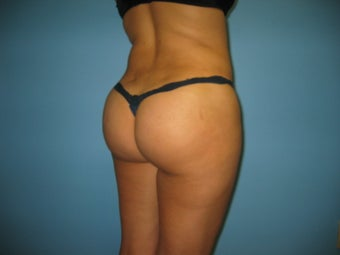 buttock augmentation (Brazilian buttock lift) after 379020