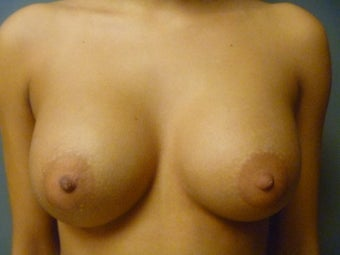 Breast Augmentation after 643247