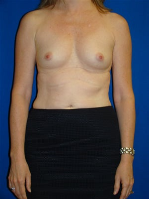 Breast Augmentation Surgery before 111860