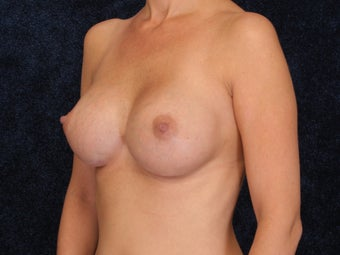 Breast Augmentation after 321993