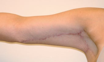 Brachioplasty (Arm Lift) After Massive Weight Loss (Front View) after 65365