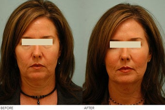 Injectable Fillers (Restylane/Perlane) before 136770