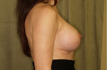 Breast Augmentation with Lift after 630071
