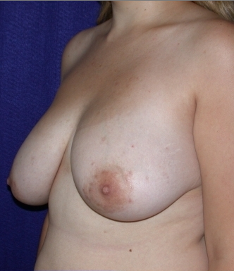 Breast Reduction before 520396