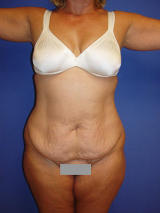 Abdominoplasty surgery before 119463