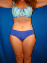 Extended Tummy Tuck, Liposuction, after 495158
