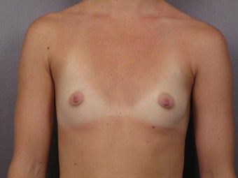 Breast Augmentation before 467306
