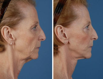 Facelift, upper and lower eyelids, fat injections to face before 253960