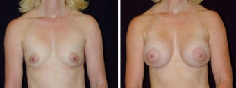 21 year old female, breast augmentation, San Francisco, California before 628366