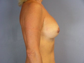 Circumareolar Breast Lift and Implants  after 307466