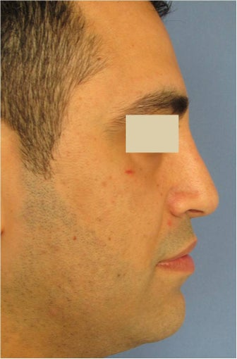 Rhinoplasty, Septoplasty after 125624