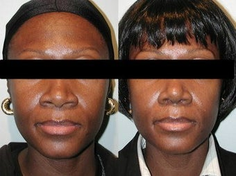 African American Rhinoplasty before 210145