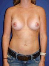 Breast Augmentation Surgery, Breast Asymmetry after 152505