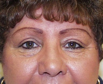 Upper Lid Blepharoplasty and Ptosis Repair after 147716