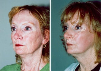 Non-Surgical Face Lift- Exoderm  before 242970