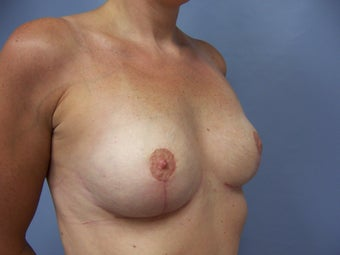 Breast Implant Removal and Breast Lift 589916