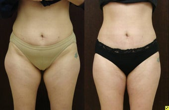 liposuction abdomen, inner and outer thighs