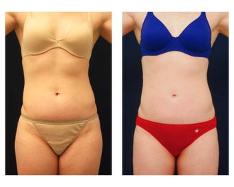 Liposuction before 397085