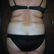 Liposuction Hips, Waist, and Bra Rolls before 203967
