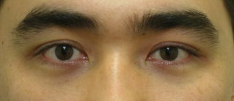 Asian blepharoplasty after 259538