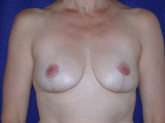 Breast Reduction after 205359