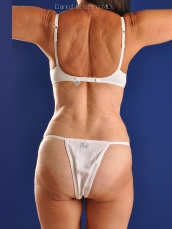 Vaser Hi Def Liposuction of abdomen, thighs, flanks and back with fat injections to buttocks after 422731
