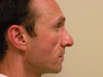 Rhinoplasty  after 425076