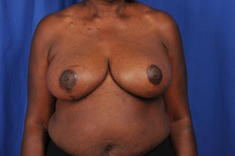 62 year-old woman desired bilateral breast reduction after 647695