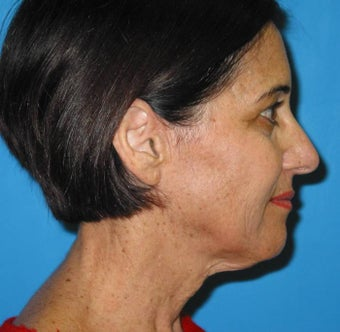 Limited Incision Neck Lift before 84222