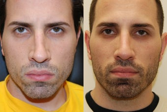 Non-Surgical Rhinoplasty with Silikon-1000 before 261247