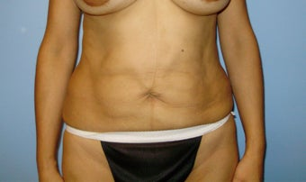Abdominoplasty before 317116