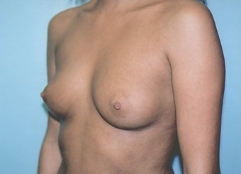 Breast Augmentation - Small B Cup to Small D Cup before 297501