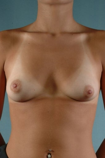 Breast Augmentation  before 240354