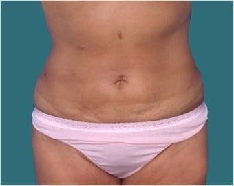 Liposuction after 590650