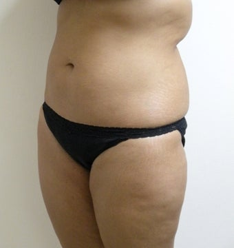 Liposuction of waist, abdomen and back before 124840