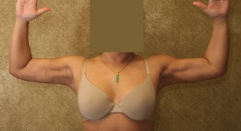 liposuction of arms for women