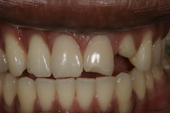 Dental Implants before 415249
