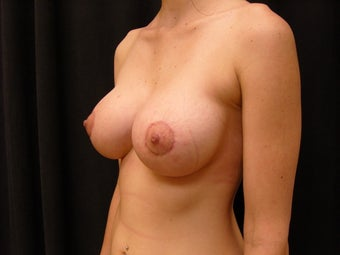 Breast Augmentation and Lift after 127879