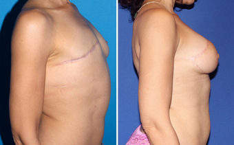 Breast Reconstruction before 331096