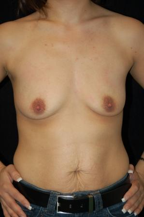 Breast augmentation before 392005