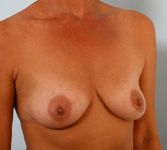 Breast Augmentation before 260908