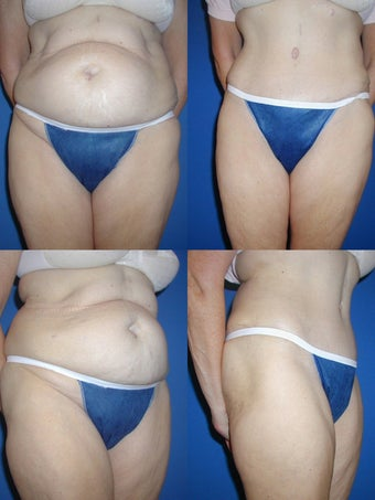 Tummy Tuck before 328461
