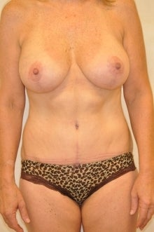 Full Abdominoplasty and Full Mastopexy Augment after 236316
