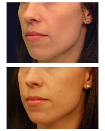 Cheek Augmentation after 347496