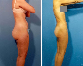 Liposuction before 636122