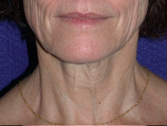 Necklift before 208444